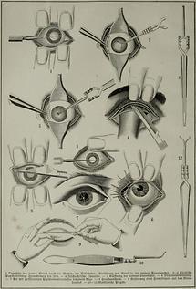 Auge (Tafel II)